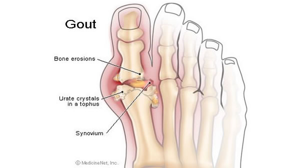 Rates of gout in UK soaring photo