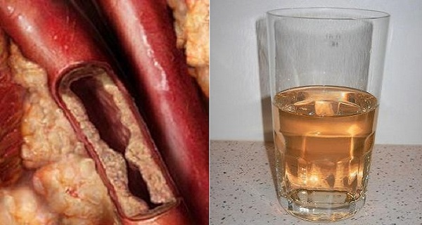 This Drink Will Unclog Your Arteries And Protect Against Heart Diseases photo