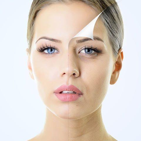 chemical peels for acne scars & skin, chemical peels treatment photo