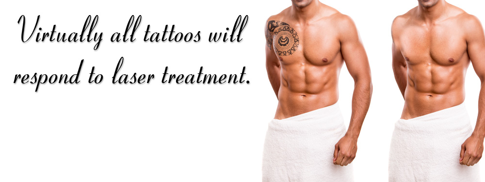 tattoo removal, laser tattoo removal, permanent tattoo removal by laser photo