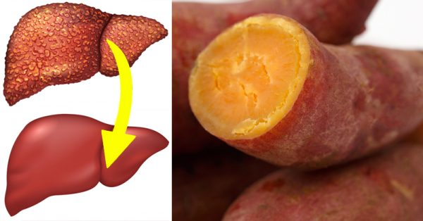 10 Foods & Supplements That Reverse Liver Disease photo