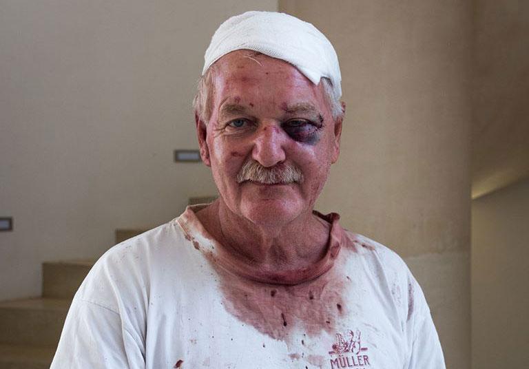 Charles Back Still Positive After Brutal Farm Attack photo