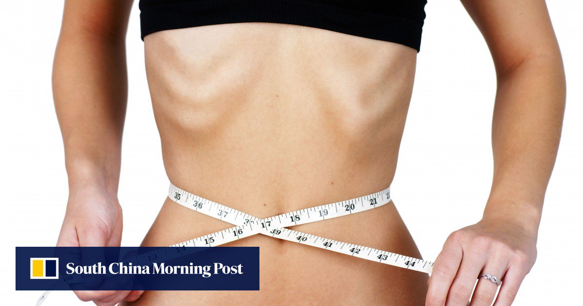 Instagram Eating Disorder ?recovery Accounts? Offer Support ? But Shouldn?t Replace Professional Help, Experts Say photo